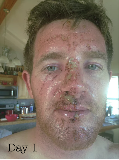 Patrick on Day one with Essential Oil Healing
